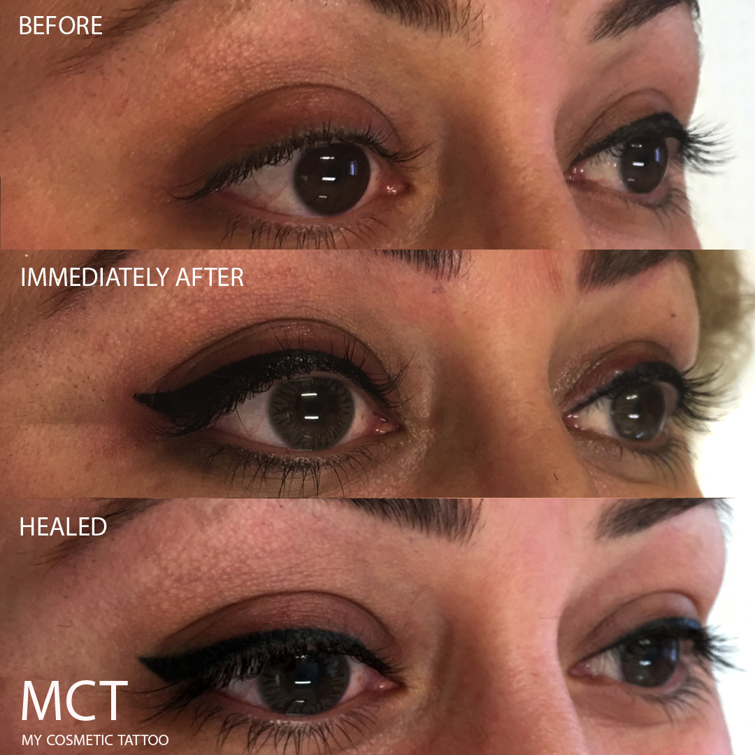 Mct Eyeliner Tattoo 3 My Cosmetic Tattoo